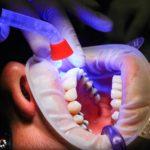 Zła droga odżywiania się to większe niedostatki w zębach a dodatkowo ich utratę